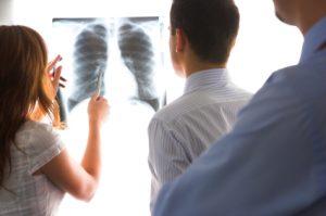 Лечени рака легких в Израиле