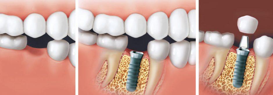 Прогрессивная стоматология Германия преуспела в этой отрасли